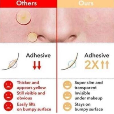 Acne Skin Spot Patches